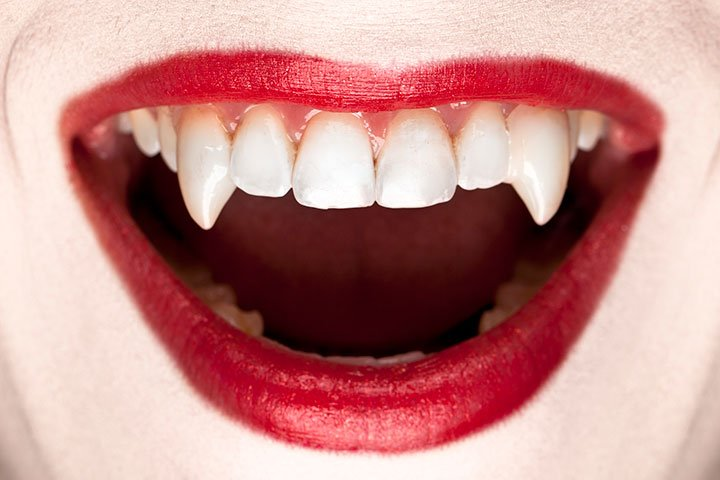 COMMENTARY: The 'true' story of vampires likely arose out of a medical disorder