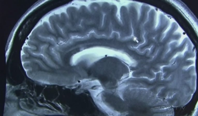 'It's just the beginning': Joint study exploring long-term impact of COVID-19 on the brain