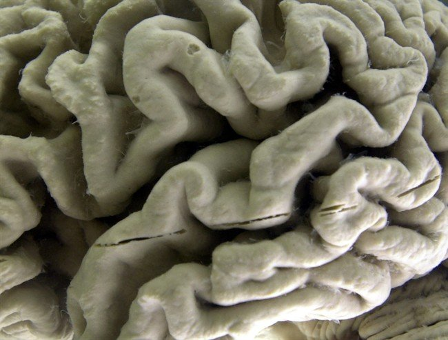 12 risk factors key to preventing nearly half of dementia cases, report says