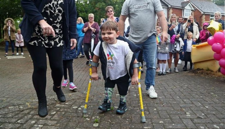 A 5-year-old boy with prosthetic legs has raised $1 million for the NHS by walking 9.6 kilometres