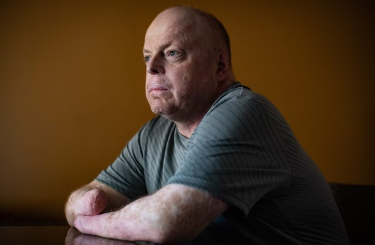 B.C. man could be Canada's first double-hand transplant recipient