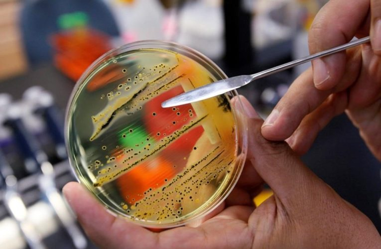 U.S.-linked salmonella outbreak leads to 59 cases across 5 provinces