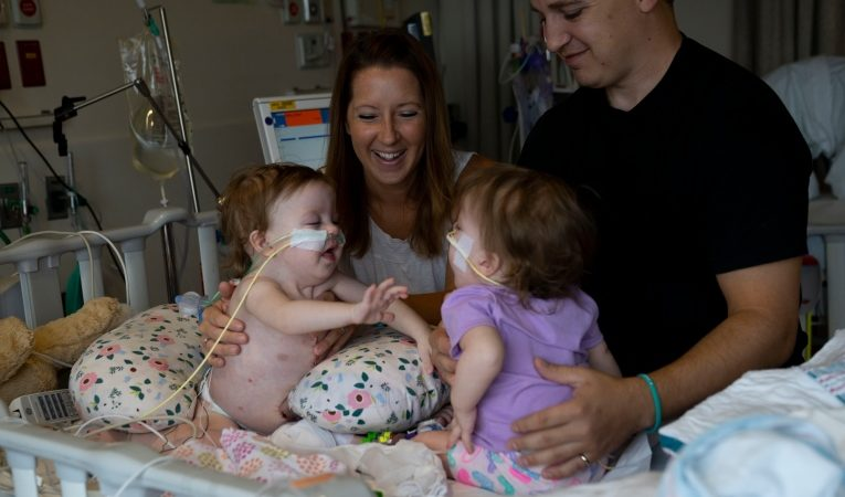 'A really unique bond': Michigan conjoined twins separated
