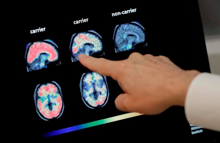 N.B. health officials tracking cluster of patients with unknown brain disease