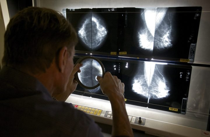 Why COVID-19 vaccines are raising false red flags of breast cancer