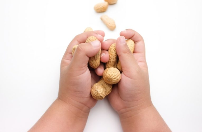 Schools shouldn't ban nuts, other allergens, new guidelines say