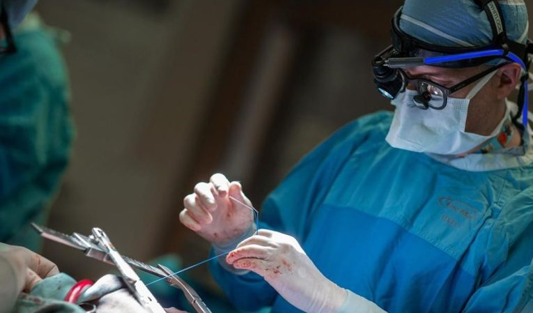 Surgery to prevent strokes in heart patients recommended worldwide: Canadian doctor