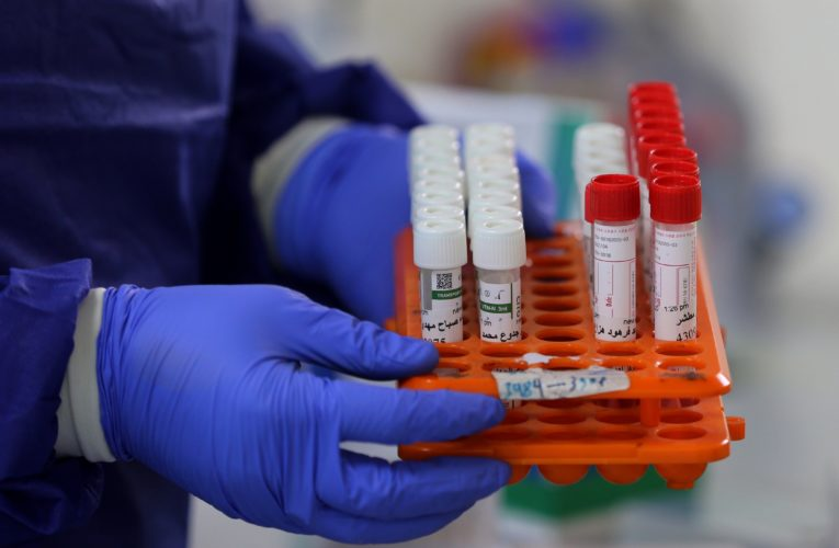 Ontario reports 864 new COVID-19 cases as daily testing increases