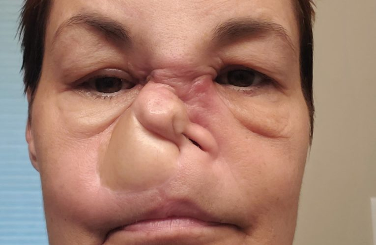COVID-19: Saskatchewan woman who was scared after Alberta surgery cancelled says it's back on